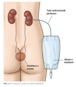 Fig. 3a: tubi nefrostomik perkutan është përdor për të zbrazur direkt urinën nga veshka në qesen e kateterit.