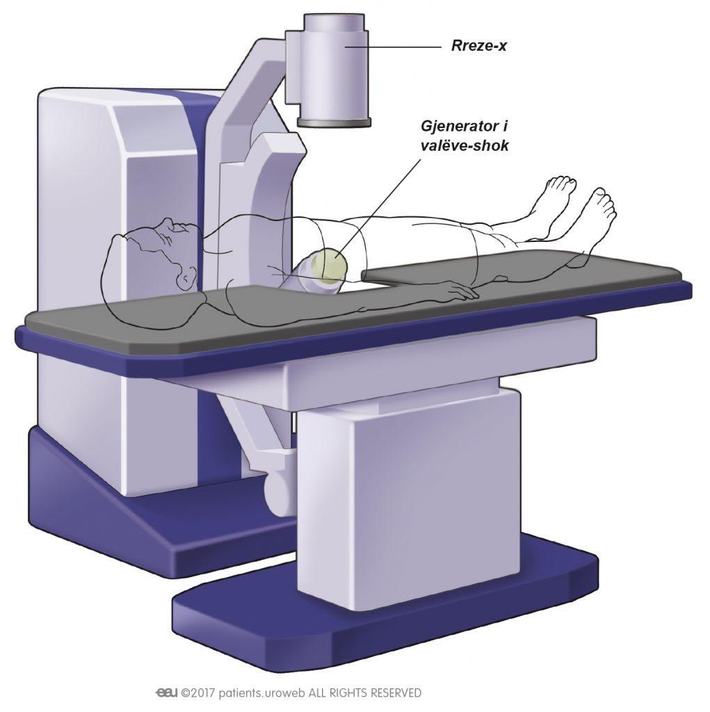 Fig. 2: Lloji i zakonshëm i makinës SWL.