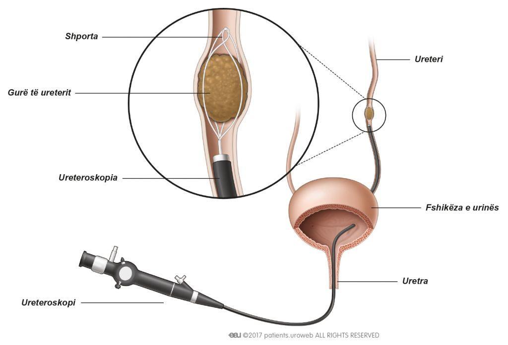 Fig. 1: Guri nxirret nga ureteri duke përdorur shportën.