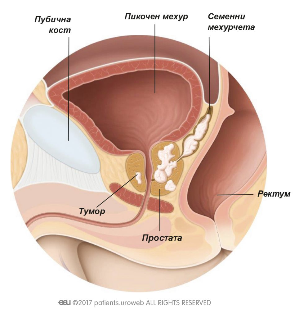 Фиг. 1: Тумор на простатата T3, който се е разпространил към семенните мехурчета.