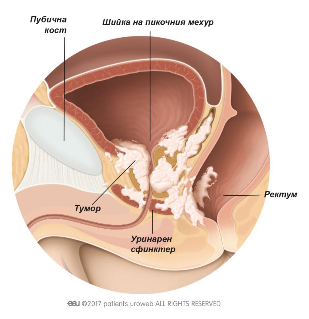 Фиг. 2: Тумор на простатата T4, който се е разпространил към шийката на пикочния мехур, уринарния сфинктер и ректума.