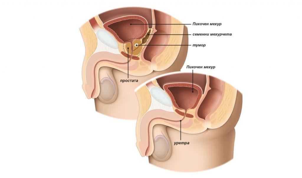Фиг. 1: При радикална простатектомия хирургът отстранява цялата простата и семенните мехурчета.