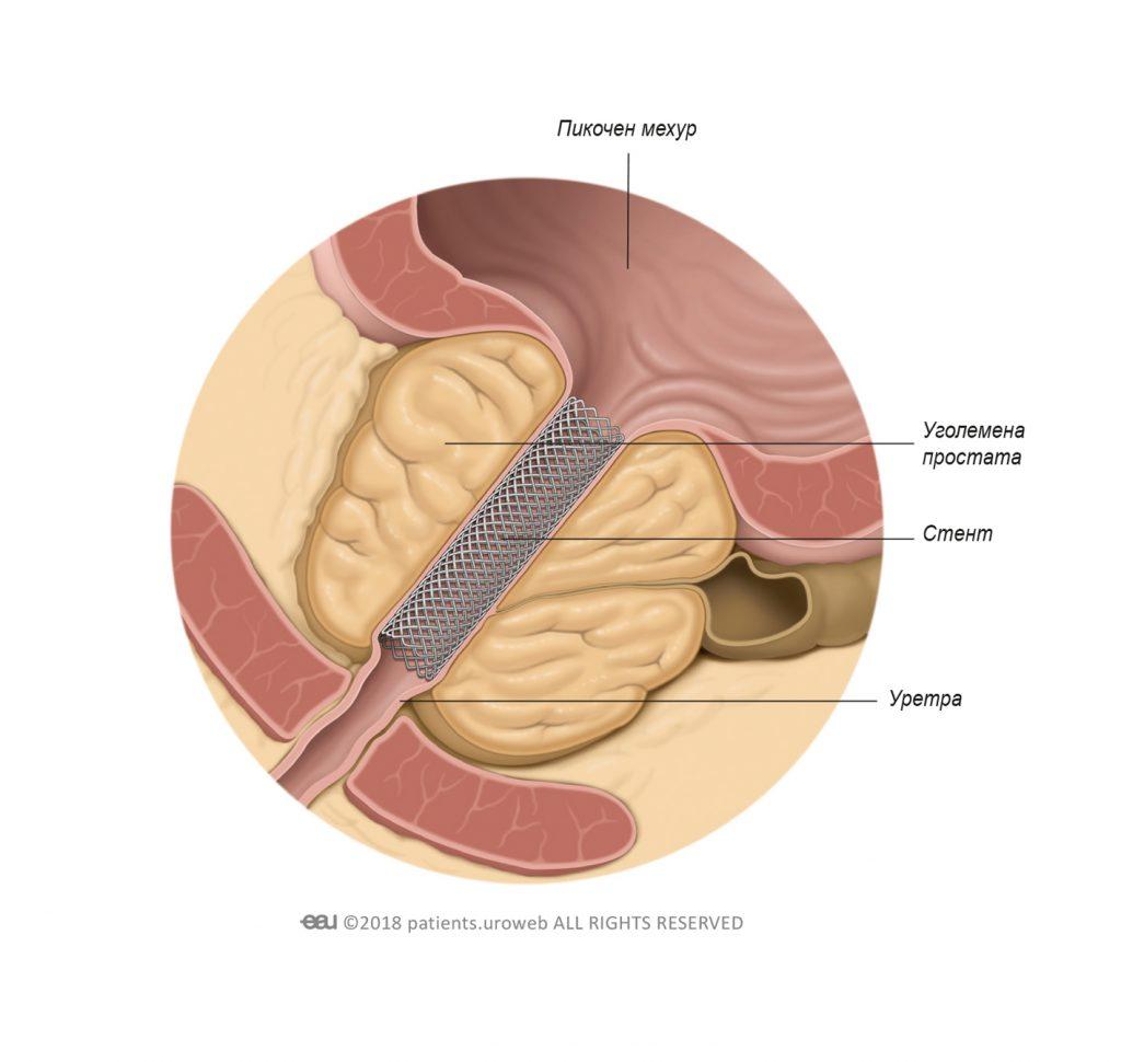 Фиг. 1: Стент на простатата подобрява дебита на урина.