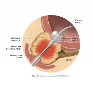 Фиг. 1: Топлината, генерирана от микровълновата антена, коагулира части от уголемената простата.