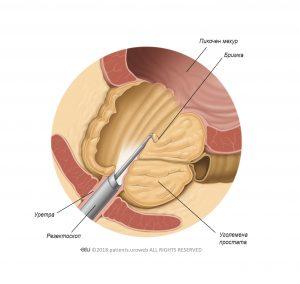 Фиг. 2: Резектоскопът премахва части от простатната тъкан по време на TУРП.