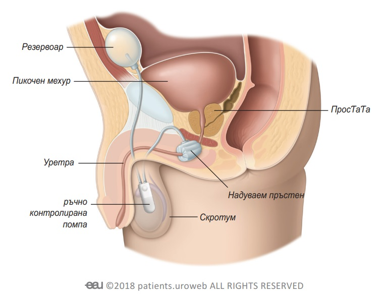 Фиг 1: Имплантиране на ИУС в долната част на пикочните пътища при жената