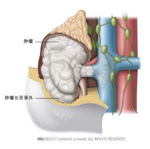 图 1: III期肿瘤已扩散至肾静脉、或肾旁脂肪组织(肾周脂肪)、或腔静脉。
