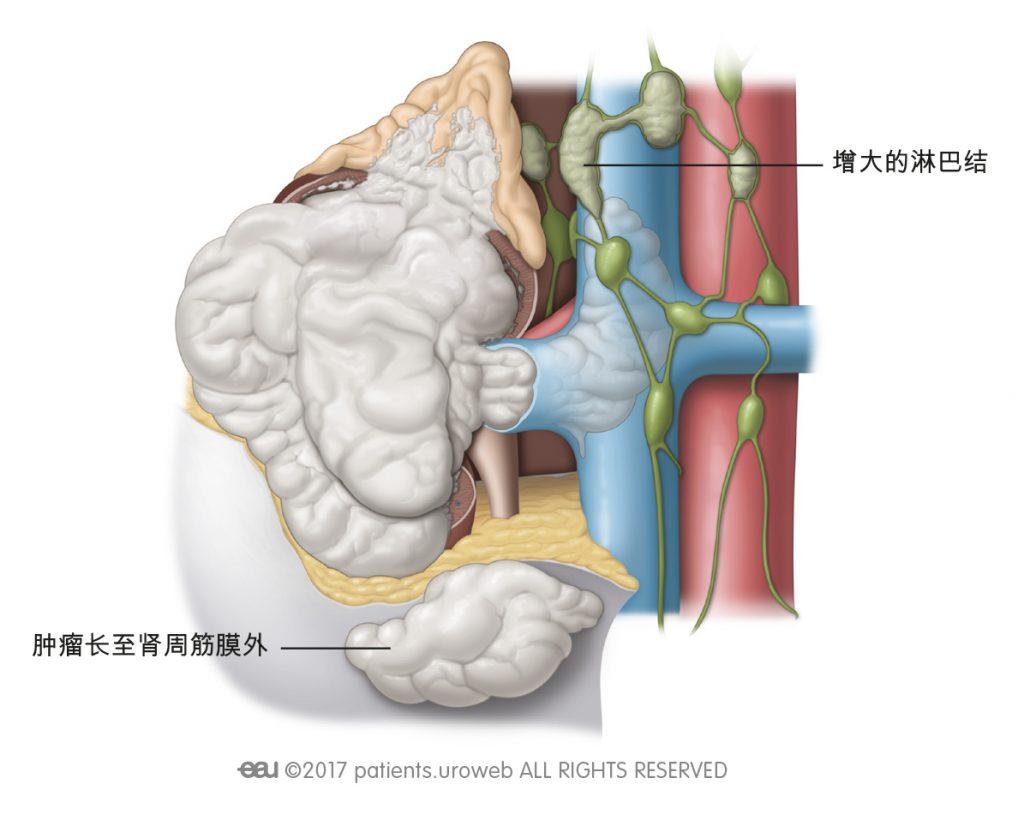 图 2: IV期肿瘤已扩散至肾外更远的部位,超出肾筋膜并进入肾上腺。有些时候,一个或多个淋巴结在这一阶段增大。