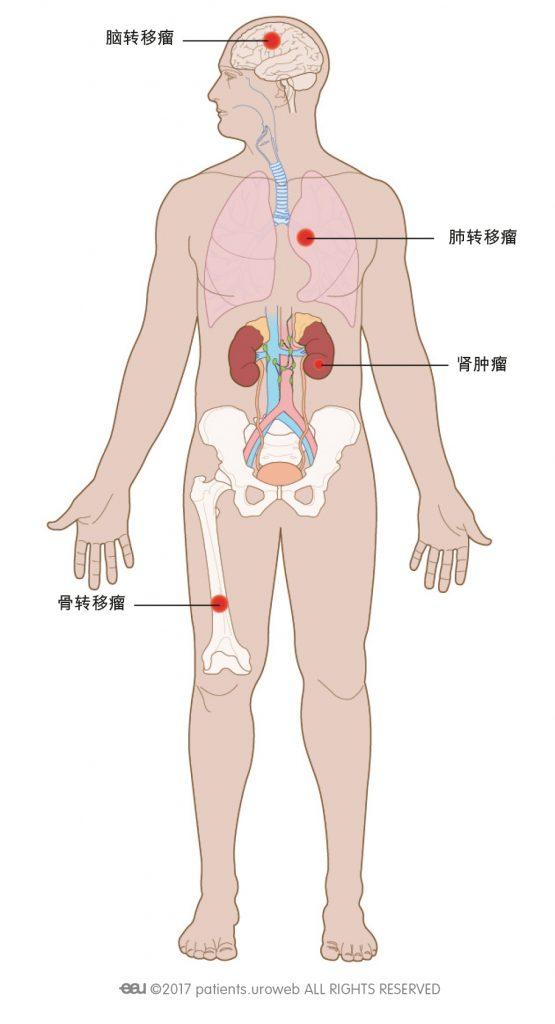 图1:转移性肾癌可扩散至肺、骨或脑。