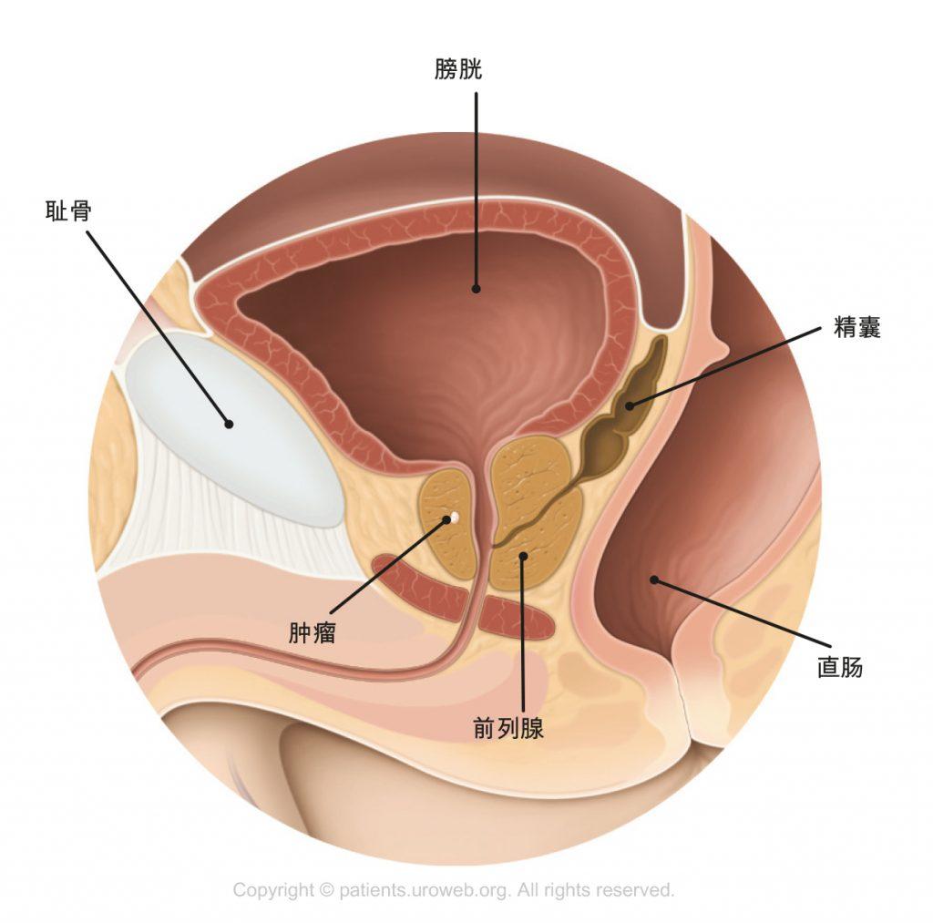 图1. T1期前列腺肿瘤太小,以至于在检查中不能被触摸到或在扫描图上无显示。