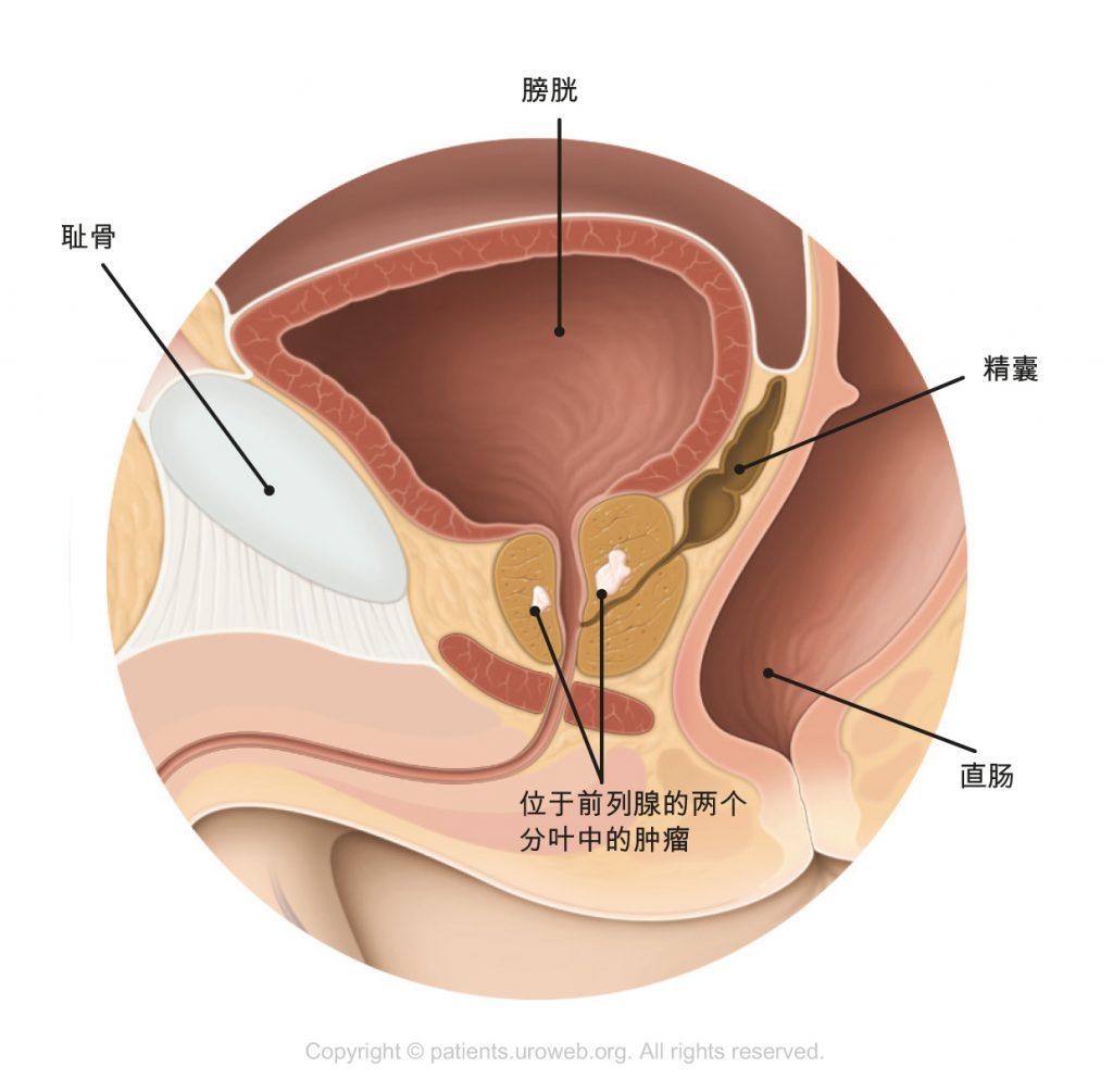 图2. T2期前列腺肿瘤局限于前列腺内。
