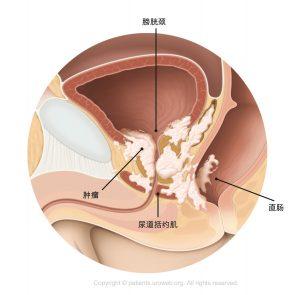 图2.已扩散至膀胱颈、尿道括约肌和直肠的T4期前列腺肿瘤。