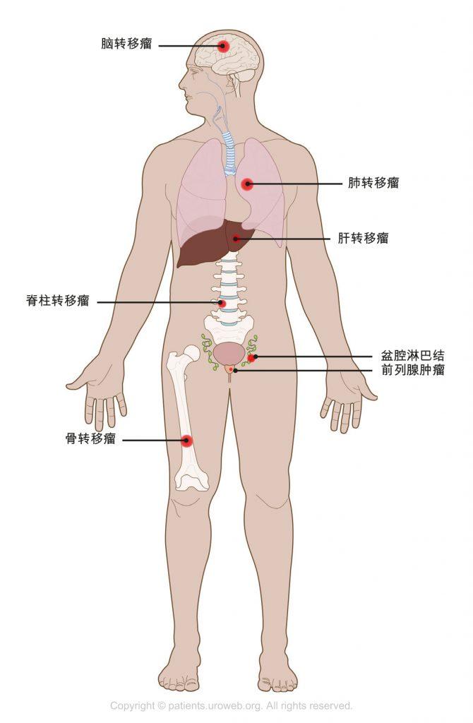 图1. 转移性前列腺癌可扩散至骨骼、脊柱、肺或大脑。