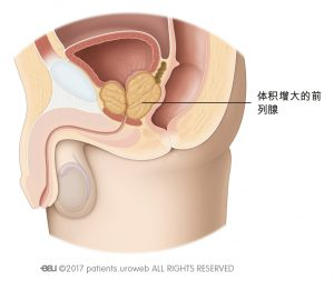 图1b:体积增大的前列腺挤压尿道和膀胱。