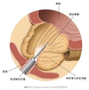 图2:在TURP术中,用电切镜切除部分前列腺组织。