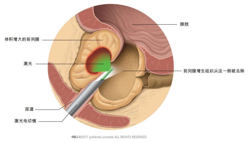 图2 通过尿道进行手术操作。