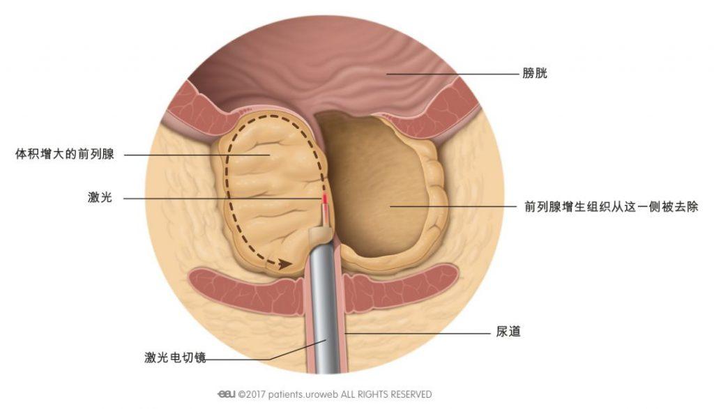 图2:在激光剜除术中,通过激光切割部分前列腺组织。