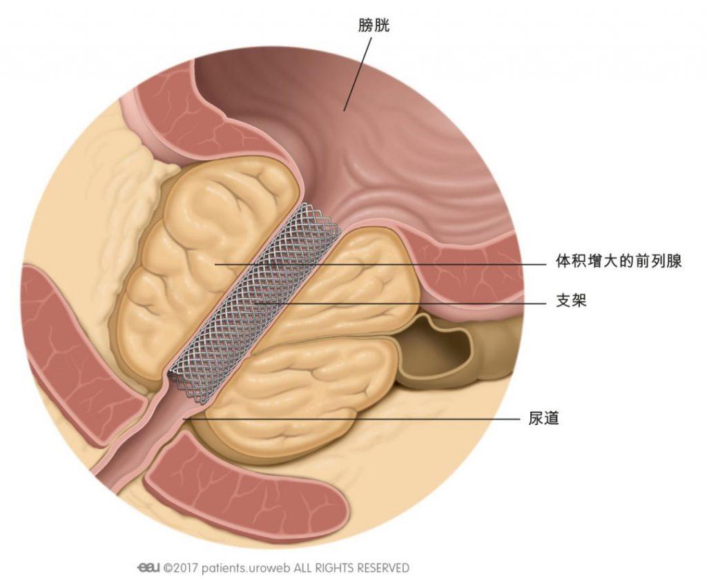 图1:前列腺支架可改善尿流率。