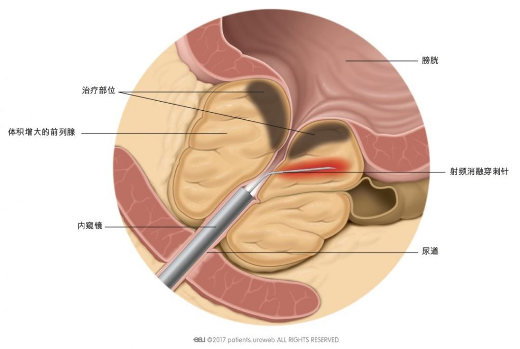 图1:射频消融穿刺针通过射频能量对前列腺组织进行加热。