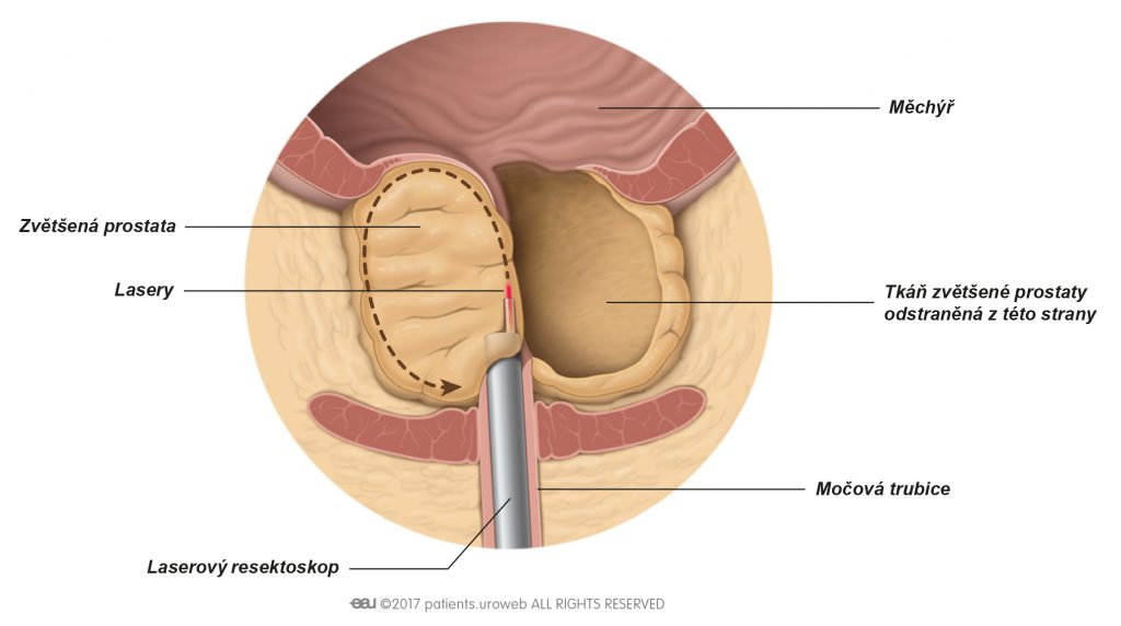 Obr. 2: Laser odřezávající části prostatické tkáně v průběhu laserové enukleace.