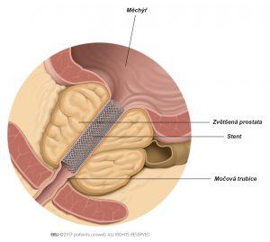 Obr. 1: Prostatický stent zlepšující průtok moči.