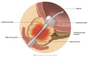 Obr. 1: Teplo generované mikrovlnnou anténou koagulující části zvětšené prostatické tkáně.