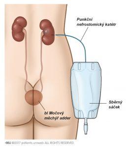 Obr. 3a: Punkční nefrostomie zavedená do ledviny k zajištění odtoku moči přímo do sběrného sáčku.