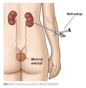 Obr. 1a: Nefroskop je užíván k odstranění kamene přímo z ledviny.