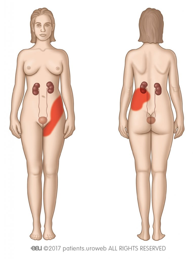 Obr. 2: Oblast vnímání kolikovité bolesti.