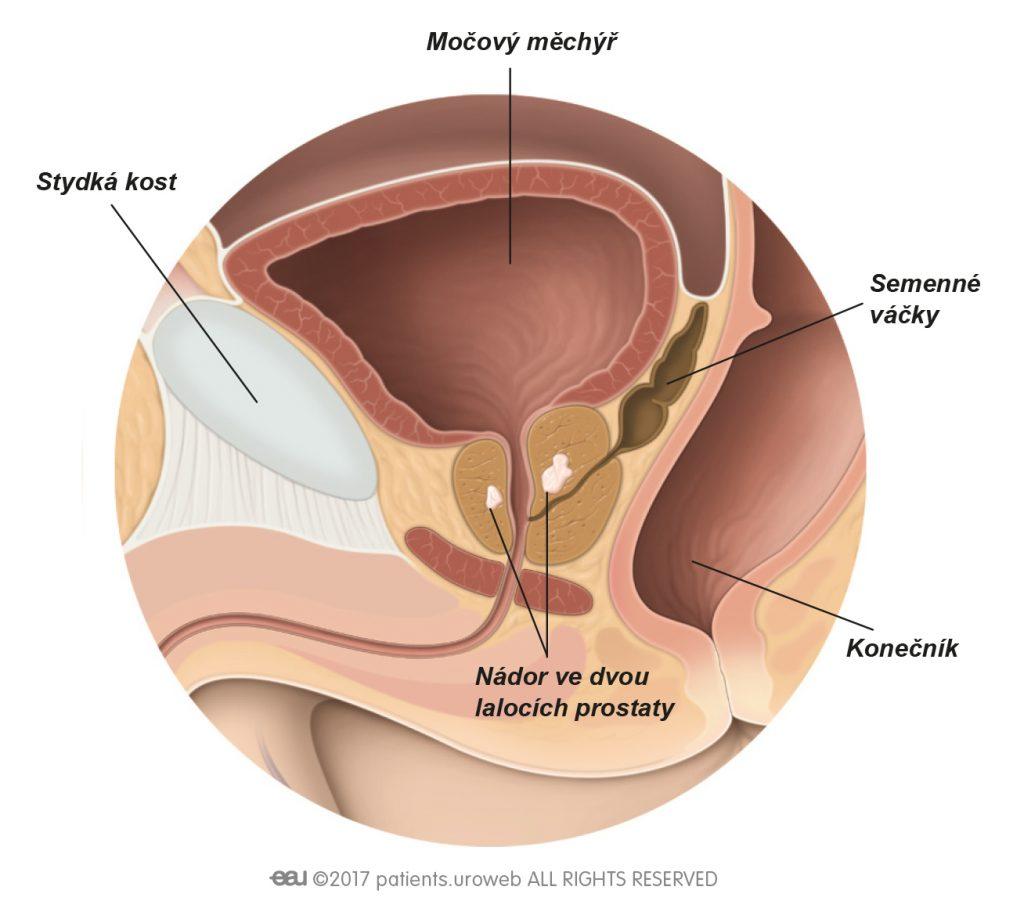 Obr. 2 Nádor T2 prostaty je ohraničen na prostatu.