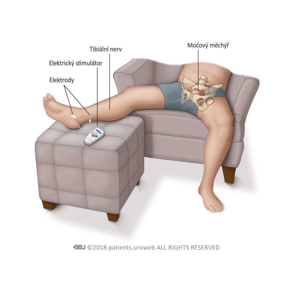 Obr. 1: Stimulace tibiálního nervu.