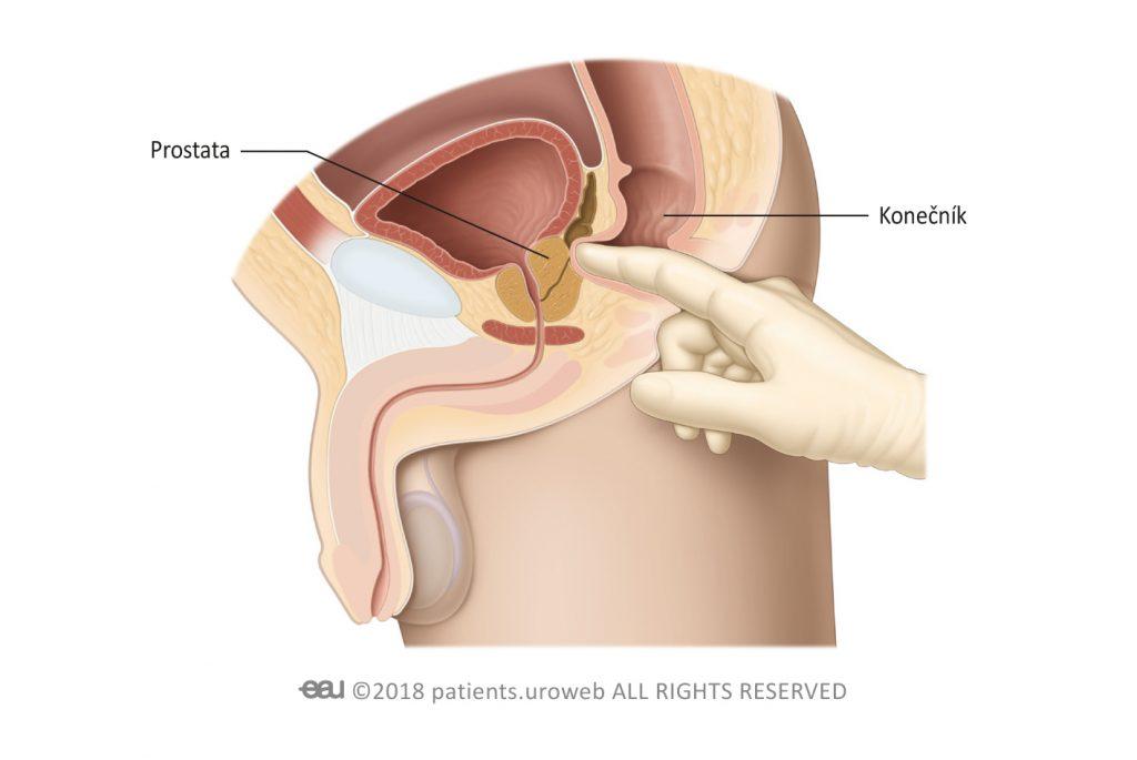 Obr. 1: Vyšetření prostaty pohmatem přes konečník k posouzení velikosti, tvaru a konzistence prostaty.