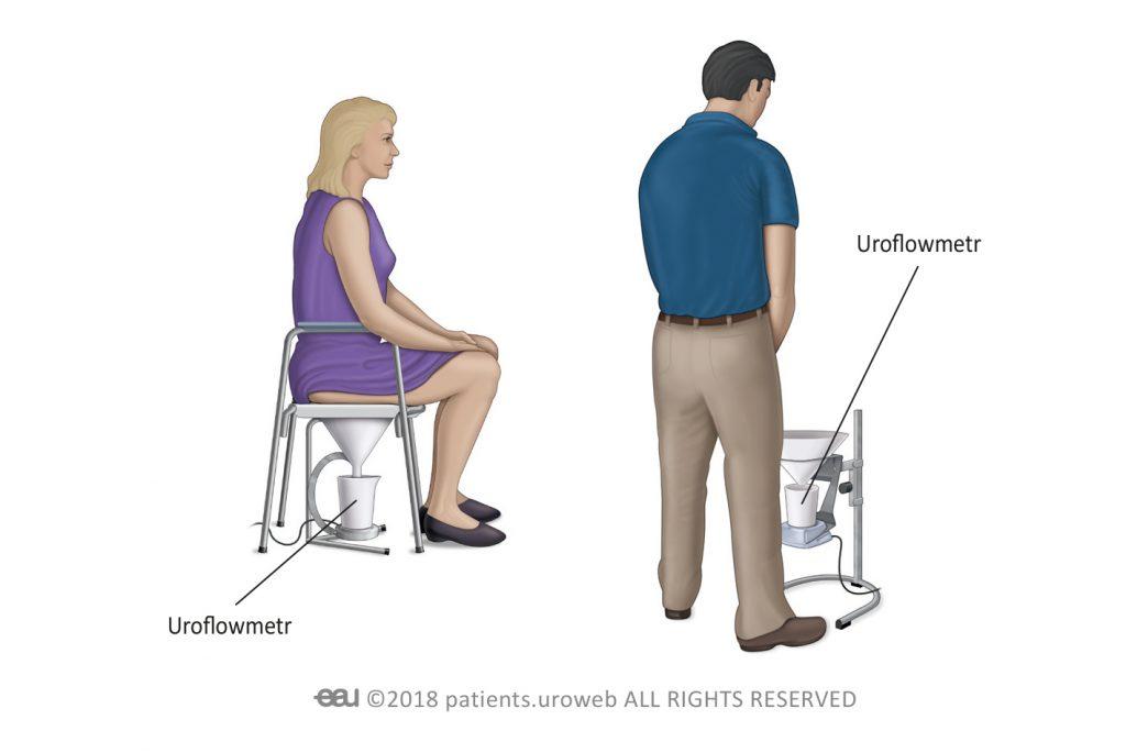 Obr. 2: Běžný typ uroflowmetru pro muže a ženy.