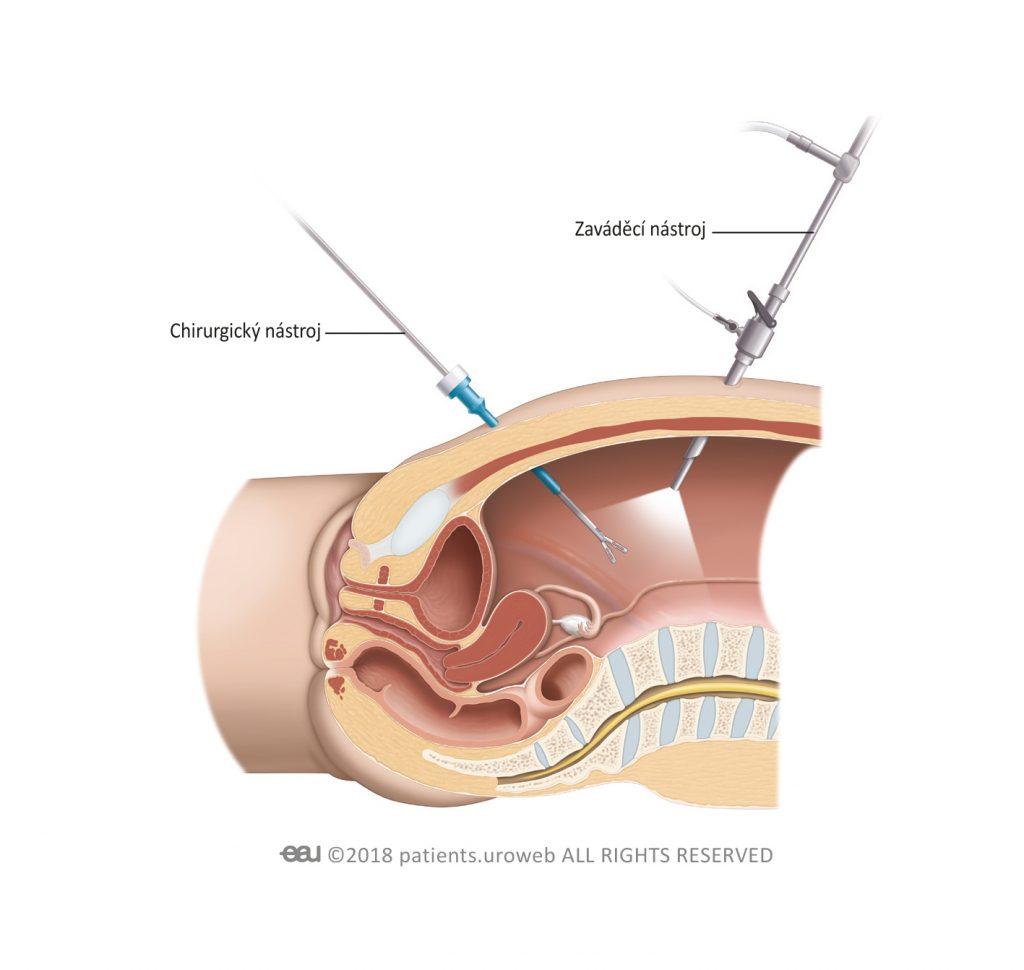 Obr. 1: Kolposuspenze dle Burche – stehy upevní přední stěnu pochvy k vazu za stydkou sponou a zvednou močových měchýř.