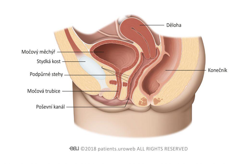 Obr. 2: Při laparoskopické operaci zavádí chirurg nástroje drobnými rankami.