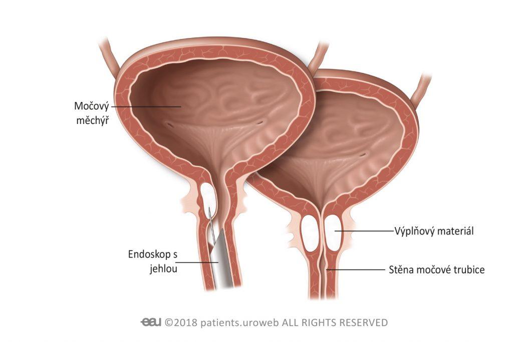 Obr. 1: Výplňový materiál vstřikovaný do stěny močové trubice.