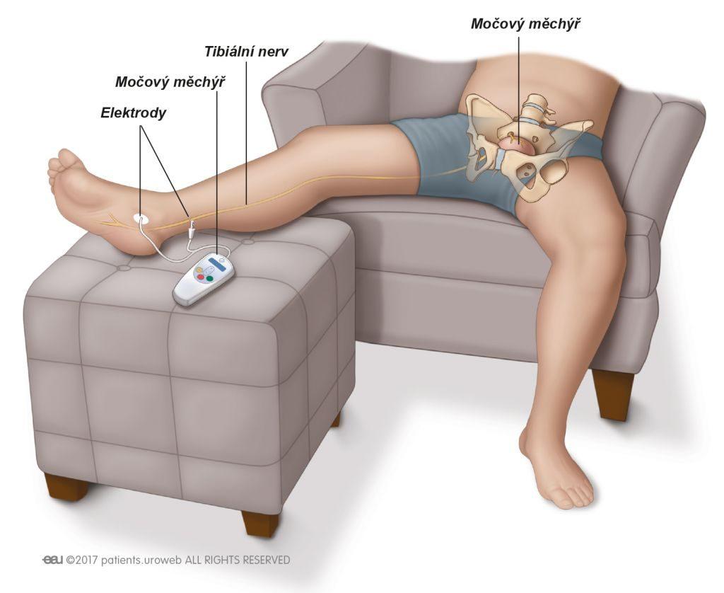 Obr. 2: Tibiální neurostimulace.