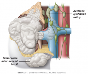 Obr. 2: Stage IV – nádory se rozšířily dále mimo ledvinu, za renální fascii a do nadledviny. V tomto stádiu někdy dojde ke zvětšení jedné či více lymfatických uzlin.