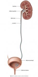 Obr. 2: JJ-stent je založen pro zajištění odtoku moče močovým traktem.