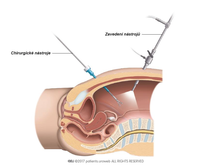 Obr. 3: Pro laparoskopickou operaci chirurg zavede chirurgické nástroje přes malé řezy v břišní stěně.