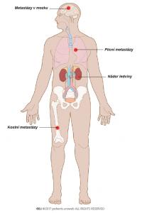 Obr. 4: Stádium IV – nádory se rozšířily mimo ledvinu za renální fascii a do nadledvin. V této fázi je někdy postižena jedna nebo více lymfatických uzlin.