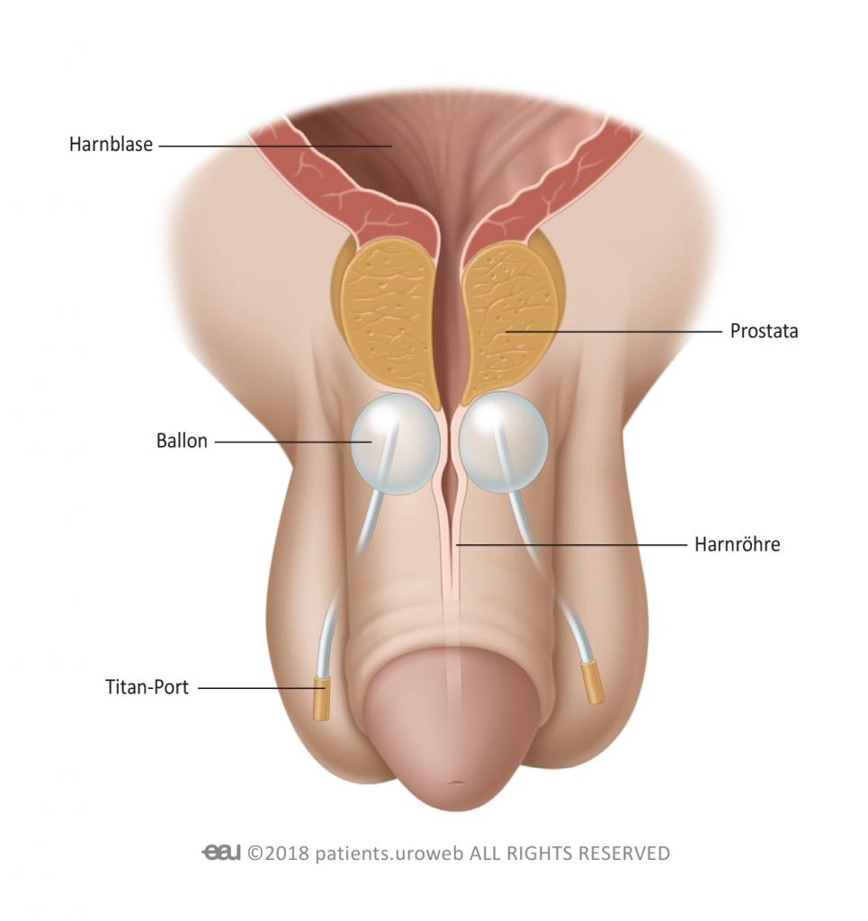 Schmerzen bauchdeckenkatheter Blasenkatheter