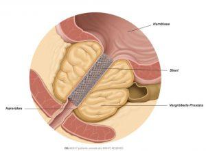 Abb. 1: Ein prostatischer Stent verbessert den Harnfluss.
