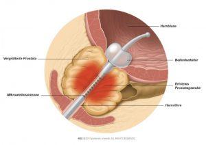 Abb. 1: Teile der vergrößerten Prostata werden durch die von der Mikrowellenantenne erzeugte Hitze koaguliert.