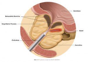 Abb. 1: Das Prostatagewebe wird mit einer Nadel durch Hochfrequenzenergie erhitzt.