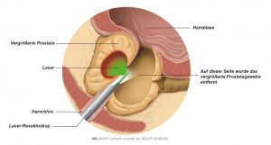 Abb. 2: Teile des Prostatagewebes verdampfen durch die Laserstrahlung.