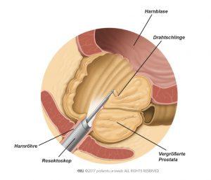 Abb. 2: Während einer TURP werden Teile des Prostatagewebes mit dem Resektoskop entfernt.