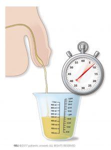 Abb. 2: Messung des Harndurchflusses durch den Patienten.