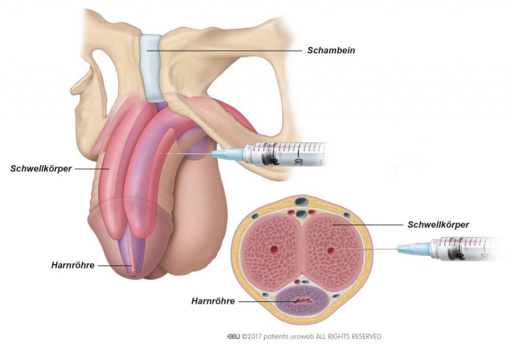Peniswurzel wo ist die Mit Penisring