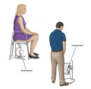 Abb. 1: Ein übliches Uroflowmeter für Männer und Frauen